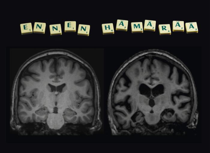 ◼Magneettikuva terveistä (vas.) ja Alzheimer-potilaan tuhoutuneista aivoista.