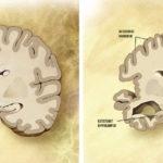 ◼Vasemmalla terveet aivot. Oikealla näkyy, kuinka Alzheimerissa aivokuori kutistuu. Aluksi   kärsii hippokampus, muistikeskus. Nesteen täyttämät aivokammiot kasvavat.