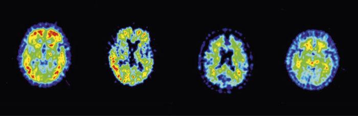 ◼PET-aivokuvan punainen väri paljastaa, miten potilaan aivoihin on kertynyt amyloidi-proteiinia. Vasemmalla on kuva Alzheimeria sairastavan aivoista, joissa amyloidia on aivokuorella. Toisena ovat lievästi muistioireisen, myöhemmin sairastuneen aivot. Kolmas kuva on muistioireisesta, jolla amyloidia ei ole aivokuorella ja joka ei sairastunut. Oikealla terveen aivokuva.