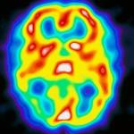 Tietokonekuva aivoista migreenikohtauksen aikana. Markkinoilla ei ole vielä kohtauksen estäviä lääkkeitä.