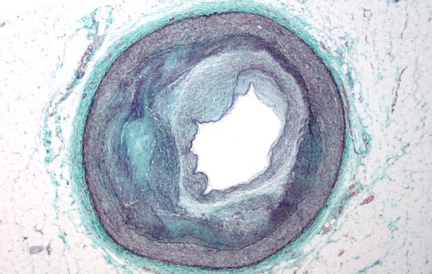 RCA_atherosclerosis-630x400.jpg