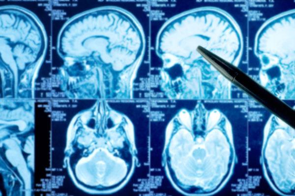 MRI- eli magneettikuva aivoista. Kuvituskuva.