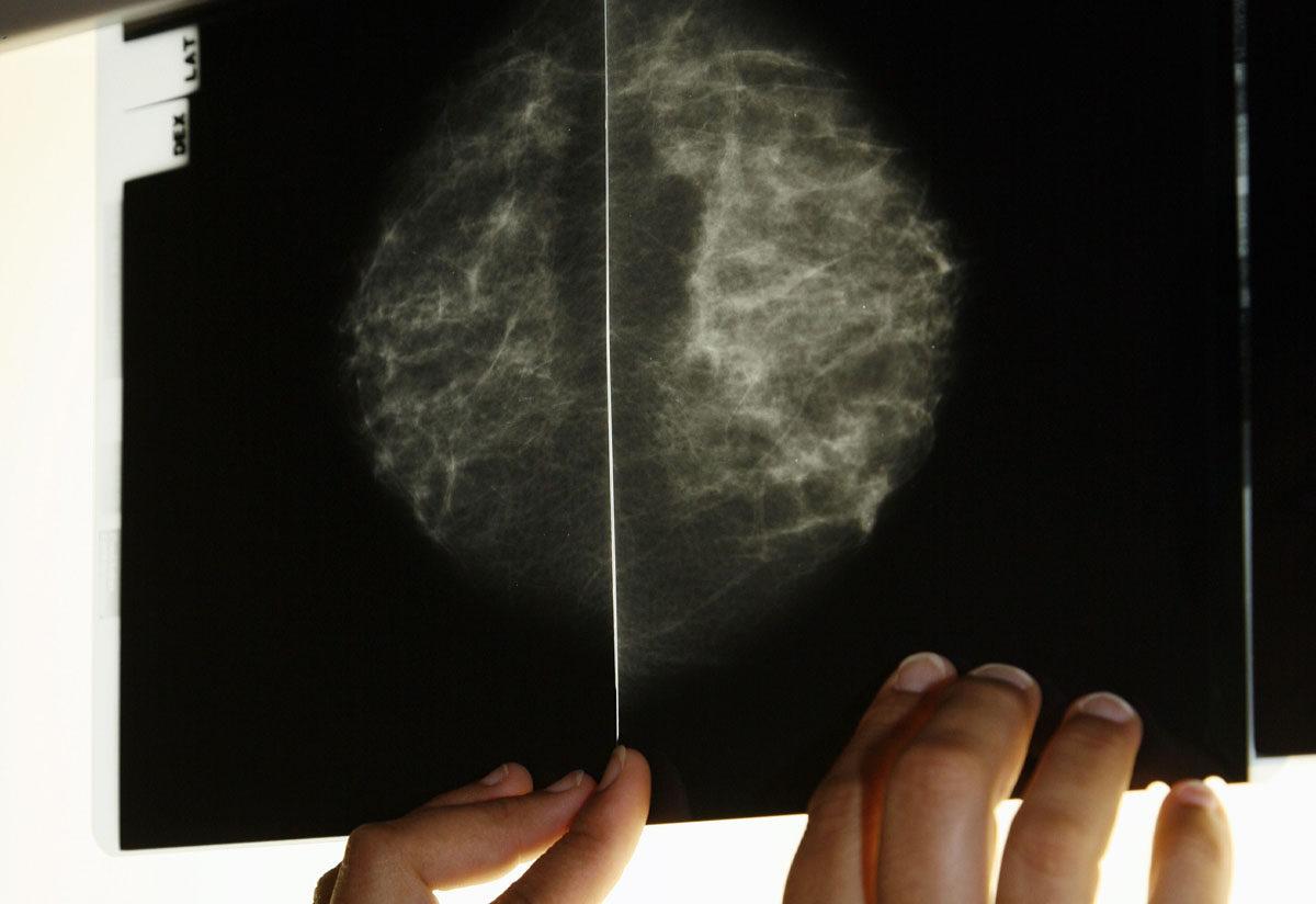 Lääkäri tutkii mammografiatutkimuksessa otettuja röntgenkuvia.