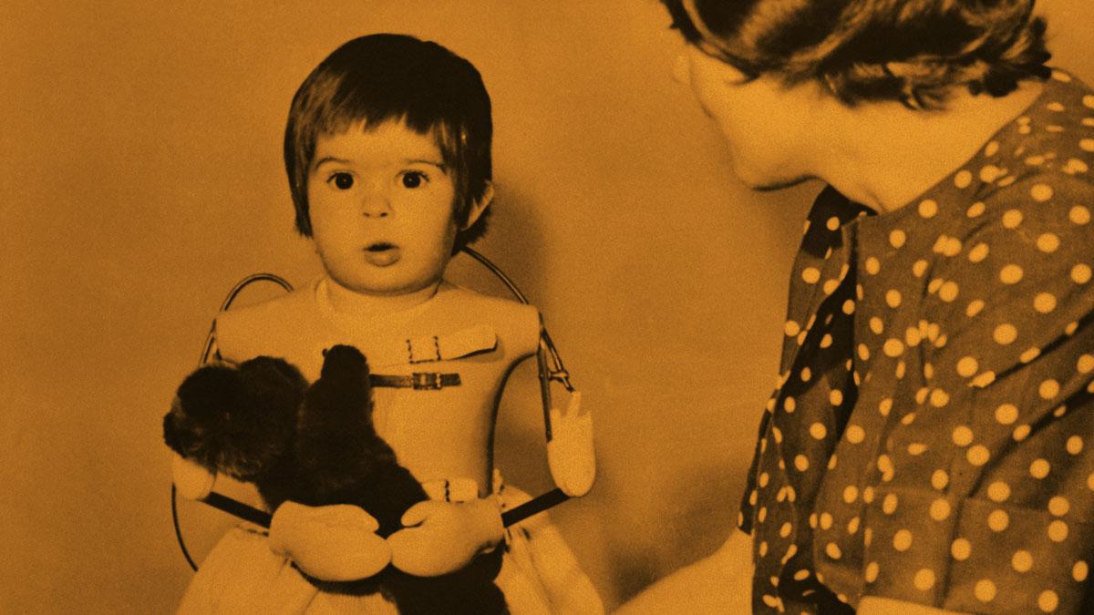 Talidomidin takia ilman käsiä syntynyt kaksivuotias opettelee käyttämään tekokäsiä.