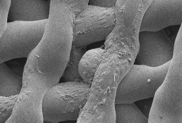 Tätä hiiren munasolua tukisoluineen on kypsytetty bioproteesissa kuuden päivän ajan.