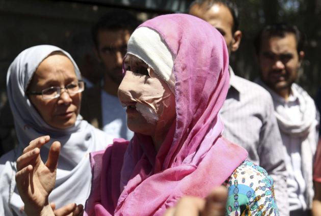 Haavoittunut nainen Kabulissa Afganistanissa 31. toukokuuta 2017.