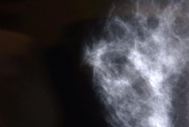 Röntgenkuva rinnasta.