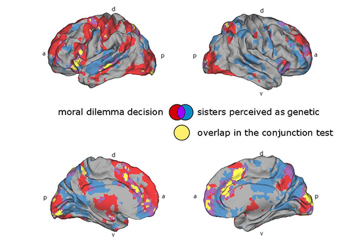 Punaiset alueet aktivoituivat, kun koehenkilöt punnitsivat, pelastaako sisko vai ryhmä muita kriisialueelta. Sininen väri näyttää, missä puitiin biologisten elokuvasiskojen välistä moraalista pulmaa.