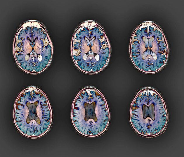 Alzheimerin tauti on yleisin dementian aiheuttaja.