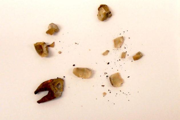 Levänluhdan kalmistosta löydettyjä hampaita, joista dna-näytteitä on otettu.