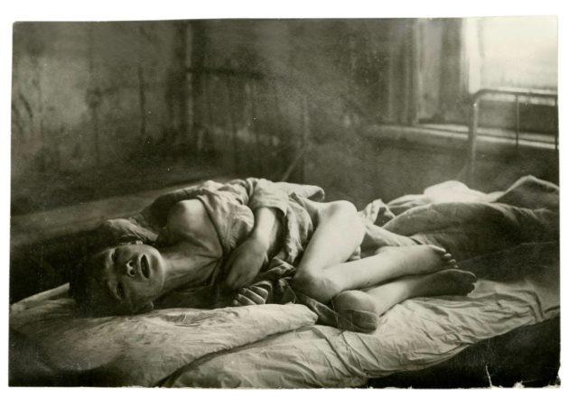 Yleisiä kuolinsyitä  olivat lavantauti, kolera ja erilaiset lastentaudit.