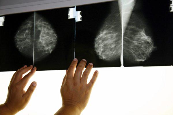 Mammografiassa eli rintojen röntgentutkimuksessa rintasyöpä on mahdollista löytää varhaisessa vaiheessa.