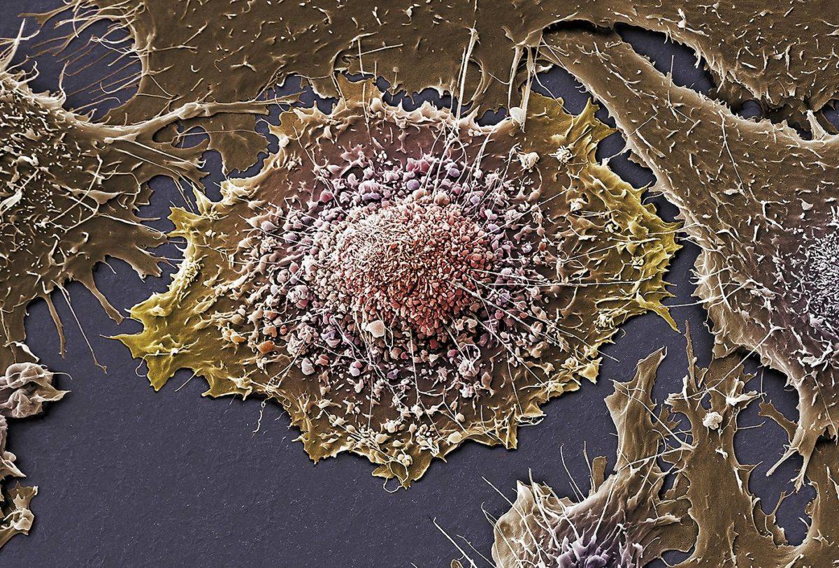 Hoitojen kehitystyö on kilpajuoksua lääkkeiden ja syöpäsolujen välillä.