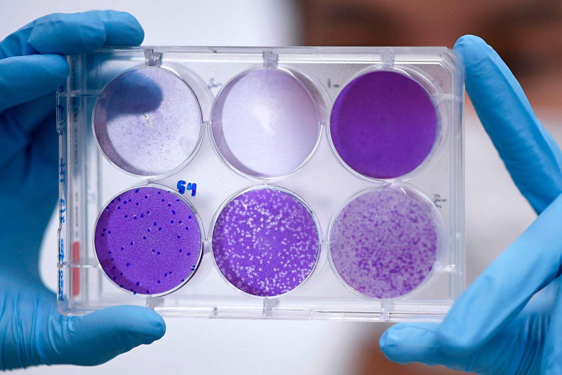 Rokotetutkija työskentelee viruksen lisääntymisvaiheiden parissa Belo Horizontessa Brasiliassa.