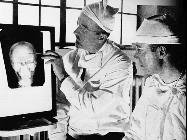 Lääkärit Walter Freeman (vas.) ja James W. Watts tutustuivat röntgen-kuvaan ennen lobotomialeikkausta Yhdysvalloissa toukokuussa 1941.