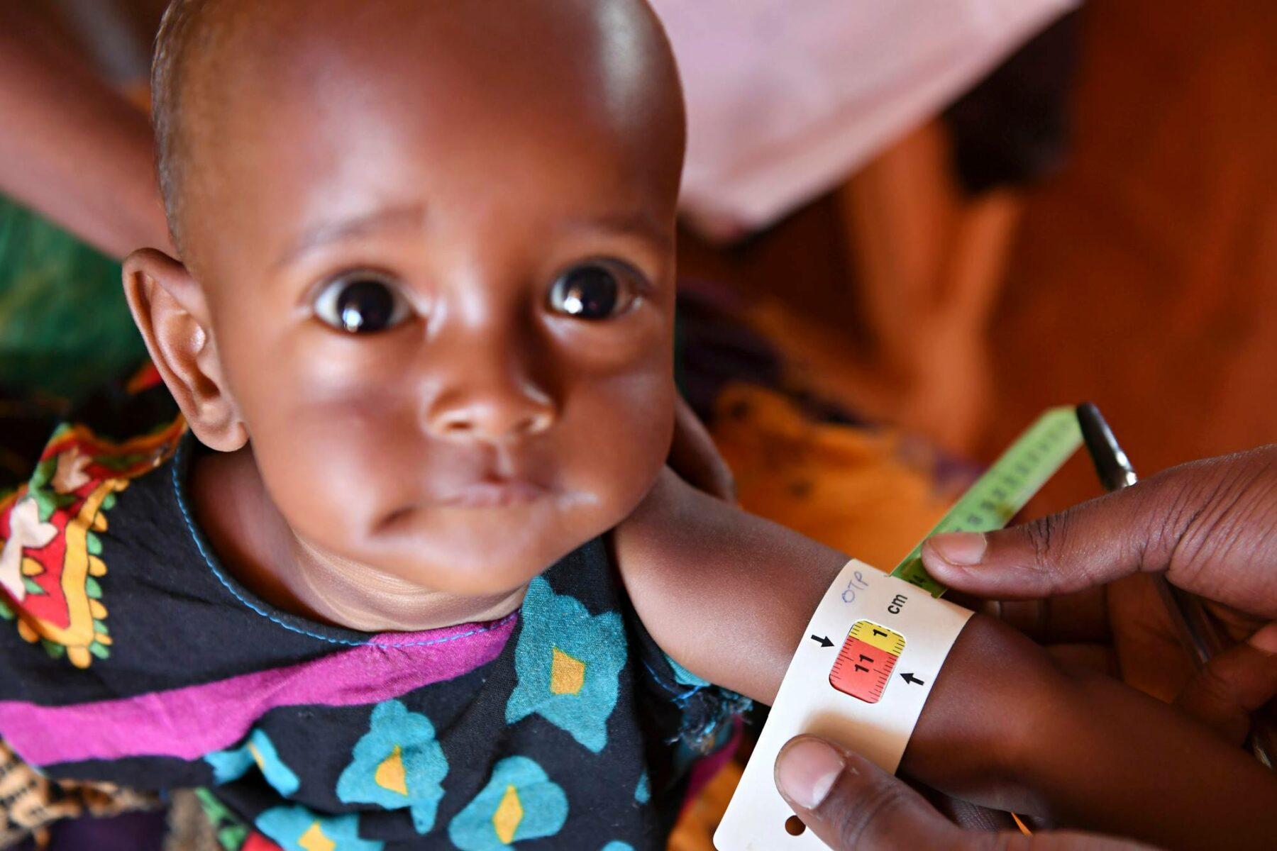 Unicefin työntekijä tutki aliravittua lasta Doolowissa Somaliassa maaliskuussa 2017.