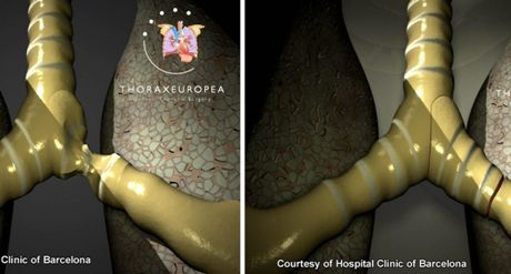 In this image released by the Hospital Clinic of Barcelona on Tuesday, Nov. 18, 2008, a patient's damaged windpipe, at left, is seen prior to a windpipe transplant, and at right, following the transplant. European doctors have performed a windpipe transplant with tissue grown from the patient's own stem cells, eliminating the need for anti-rejection drugs. (AP Photo/Hospital Clinic of Barcelona, HO)